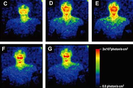 Very sensitive cameras capture light emitted from the body. Kyoto University, Tohoku Institute of Technology / Livescience.com